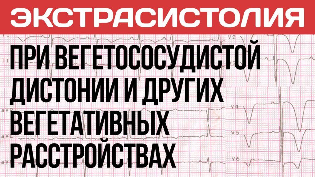 Экстрасистолия при вегетососудистой дистонии (ВСД), панических атаках и неврозе!
